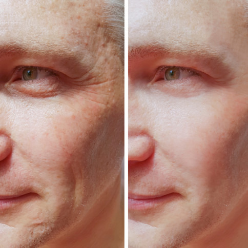 NeoLTS Facial Rejuvenation grand rapids mi